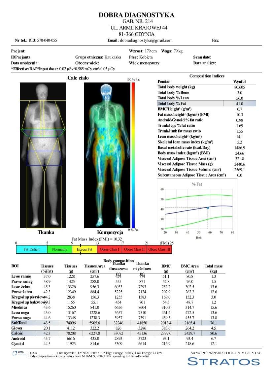Densytometria - wynik badania